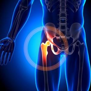 20869435 - hip joint anatomy bones